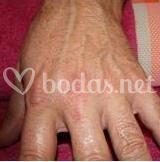 Tratamientos de hidratación de manos
