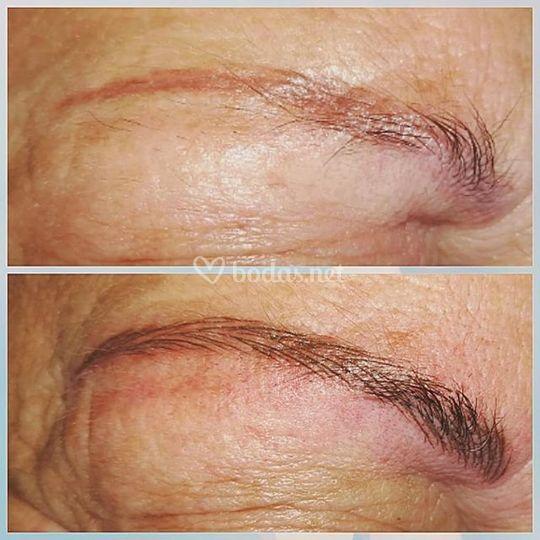 Corrección micropigmentación