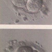 Embarazo y endometriosis - 1