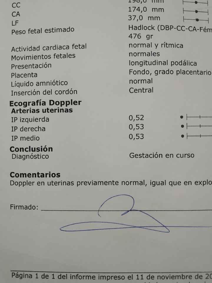 Preeclampsia - siguientes embarazos y prematuros - 1
