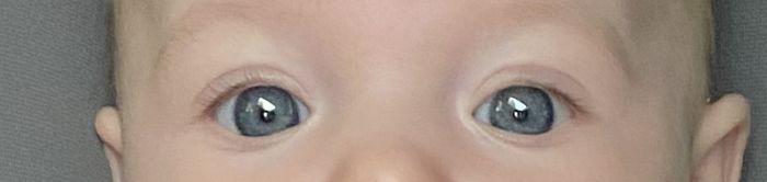 Color de ojos Recién Nacido - 2