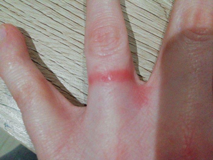 Daño en el dedo del anillo. - 1