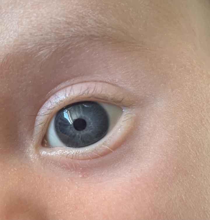 Color de ojos Recién Nacido 2