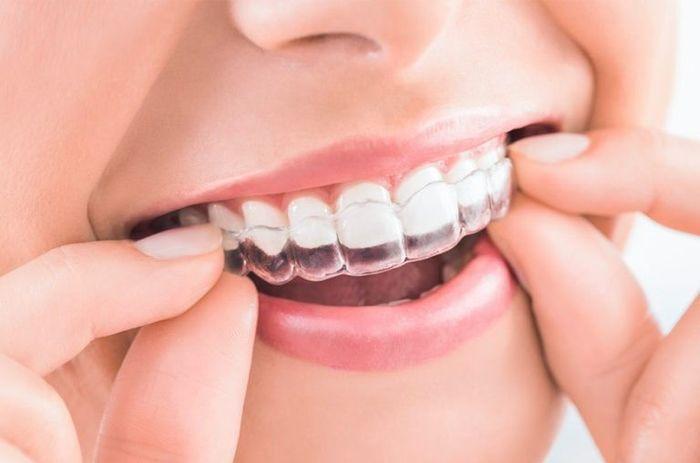 Dilema existencial: ortodoncia 2