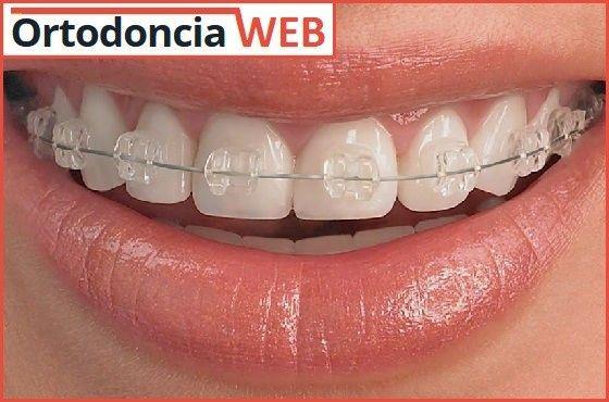 Dilema existencial: ortodoncia 1