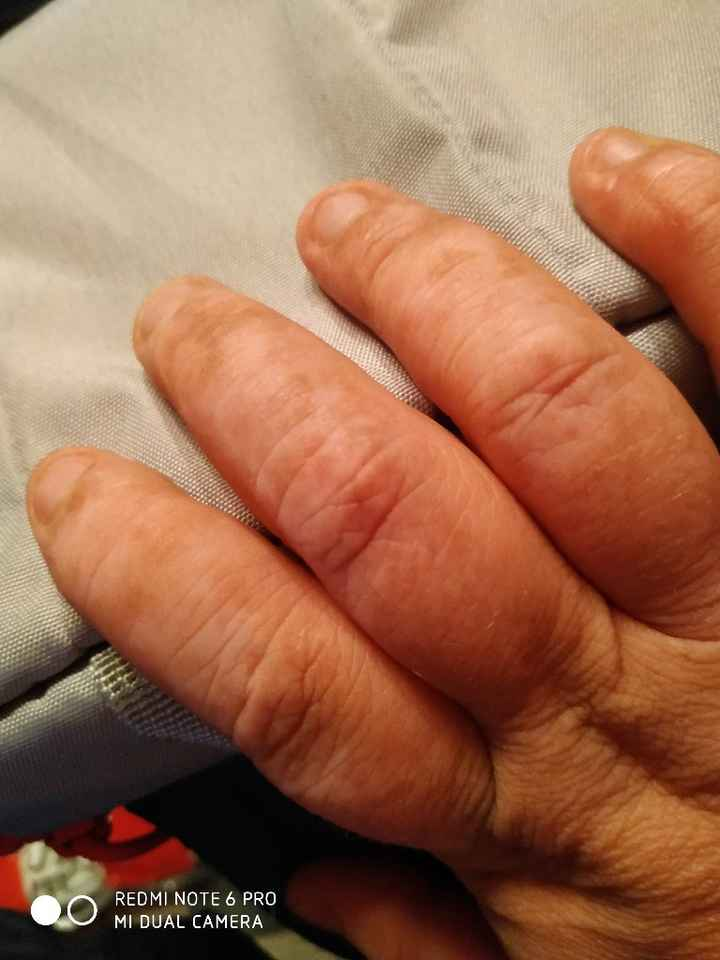 Dermatitis - 1