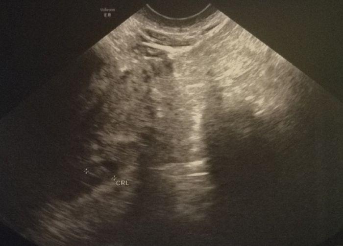 Metodo saad ramzi para saber el sexo del bebe 3