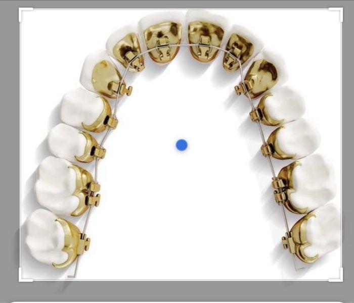 Dilema existencial: ortodoncia 3