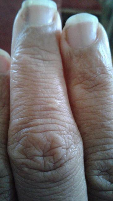 Rayas Negras Linear Unit Las Uñas De Las Manos Rayas Negras En Uñas Manos