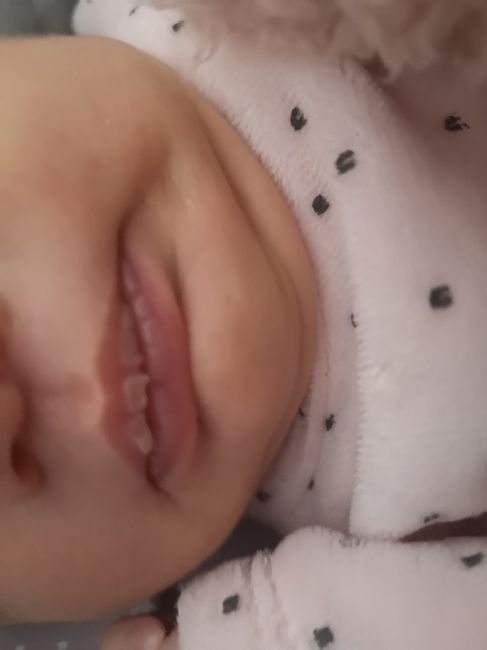 Cesárea y lactancia materna - 1