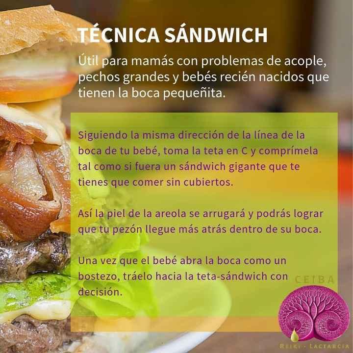 Técnica sándwich