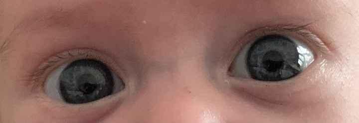 Color de ojos Recién Nacido - 1