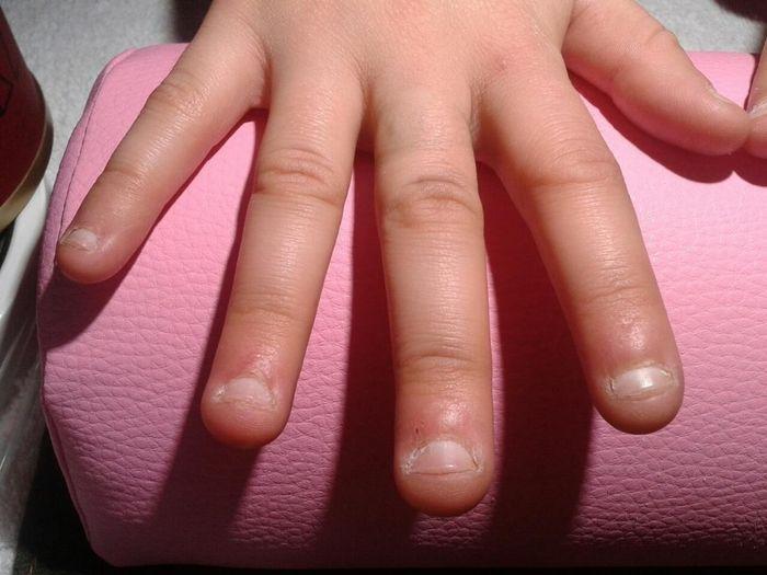 Dejar de morderse las uñas - Belleza - Foro Bodas.net